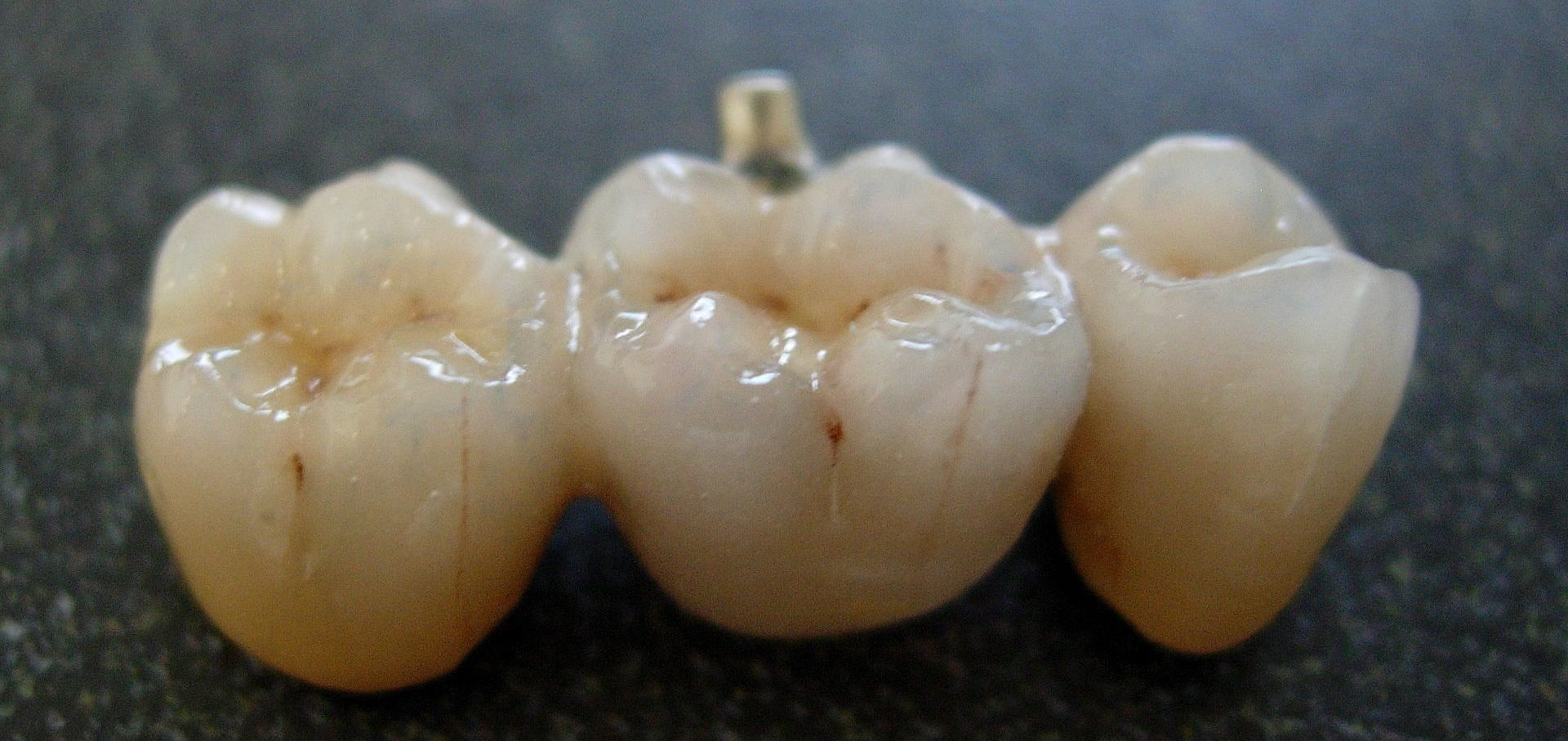 Muokattu lähteestä: https://en.wikipedia.org/wiki/Bridge_(dentistry)#/media/File:Bridge_from_dental_porcelain.jpg
