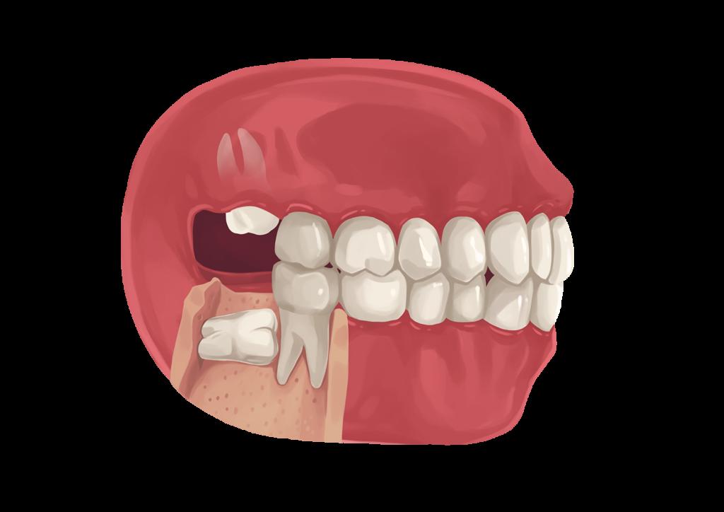 Kuvalähde: https://www.authoritydental.org/dental-images/274/