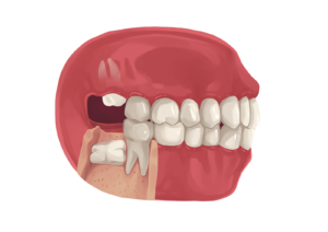 Kuvalähde: https://www.authoritydental.org/dental-images/274/