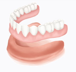 Muokattu lähteestä: https://www.authoritydental.org/dental-images/121/