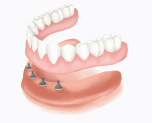 Muokattu lähteestä: https://www.authoritydental.org/dental-images/119/